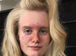 Après l'effet coup de soleil, la Fashion Week de Milan met l'acné à l'honneur