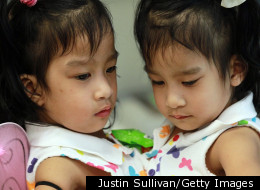 8 Most Amazing Successful Conjoined Twin Separations