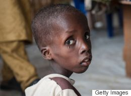 49,000 Kids Dying Of Malnutrition Linked To Boko Haram