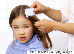 Everything You Don't Want To Know About Head Lice
