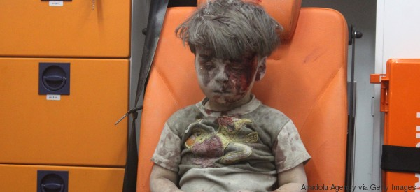 Little Boy In Aleppo: Heartbreaking Image Spurs Emotions And A Call For Help