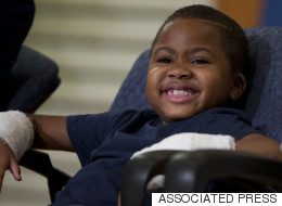 First Child With Double-Hand Transplant Is Inspiring Us All