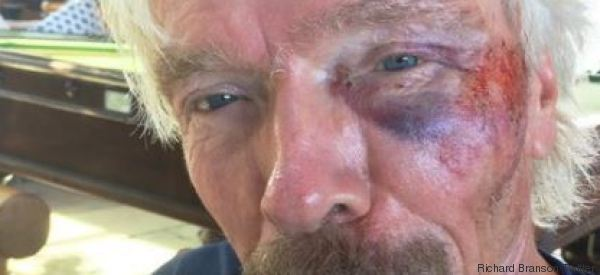 Richard Branson a eu un grave accident de vélo