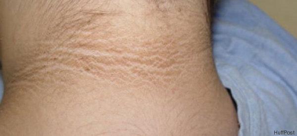 Sie entdeckte schwarze Streifen im Nacken ihrer Tochter - jetzt warnt sie vor der Krankheit, die dahinter steckt