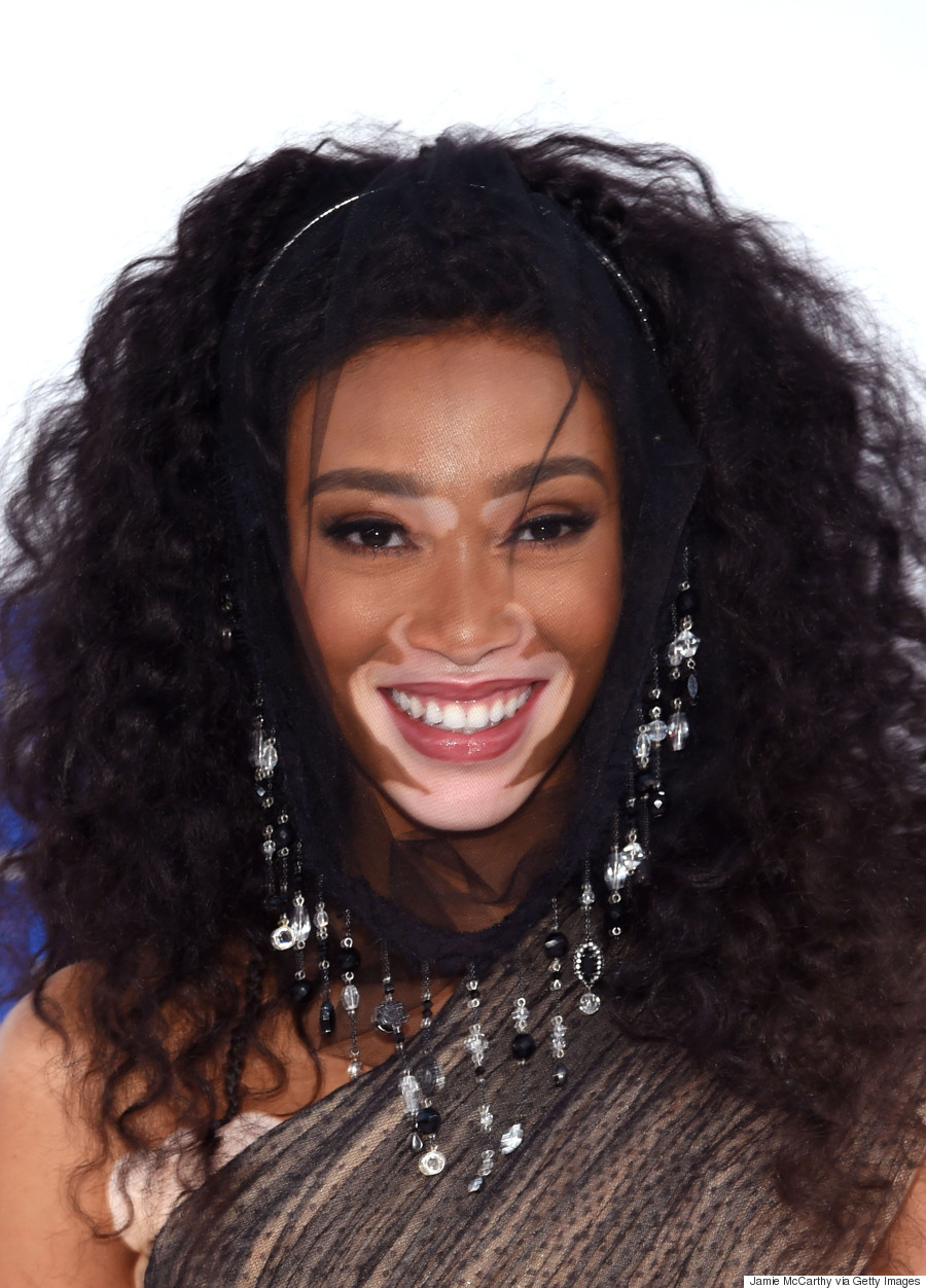 winnie harlow proves shes the model of the moment at the