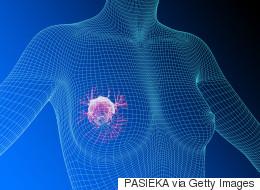 Il était une fois la maladie: le cancer du sein