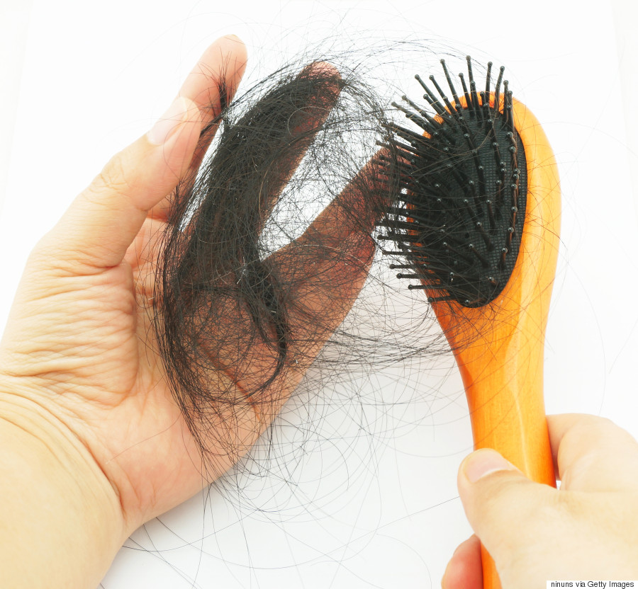 how to tell if hair is thinning female