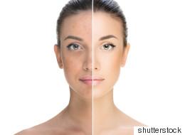 Comment concilier maquillage et acné