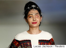 Défigurée à l'acide, elle défile pendant la semaine de la mode à New York (VIDÉOS)