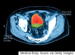 Cancer localisé de la prostate: pas de différence avec ou sans traitement