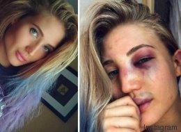 Cette star de la MMA montre la brutalité de son sport avec des selfies impressionnants
