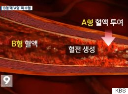 종합병원이 수술 중 'B형 환자'에게 'A형 피'를 수혈했다