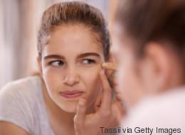 Neue Studie: Wer unter unreiner Haut leidet, sieht später besser aus als andere