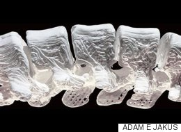 Un nouvel os synthétique stimule la régénérescence osseuse naturelle chez des animaux