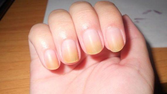 vertical brown or black bands