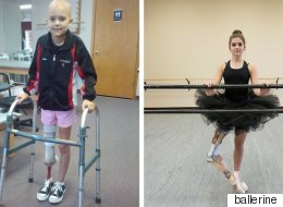 Voyez ce qu'est devenue cette jeune ballerine amputée à cause du cancer