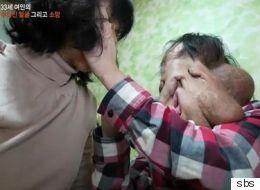 신경섬유종 환자 심현희 씨를 위한 후원이 폭주하고 있다