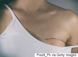 Le cancer pourrait tuer 5,5 millions de femmes chaque année en 2030