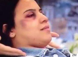 Polémique après la diffusion d'une démonstration de maquillage pour femmes battues dans ce pays