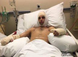 Der Mann dachte, er hätte nur eine Erkältung - jetzt wurden ihm beide Beine amputiert