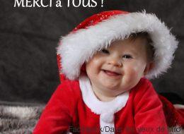 Porteur de trisomie 21, ce bébé gagne un concours de photo