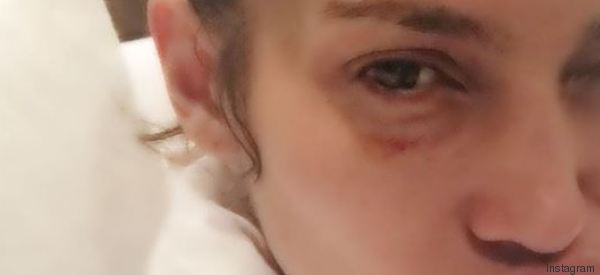 Occhio nero e sguardo triste, Jennifer Lopez pubblica la foto su Instagram. Ma non è come sembra