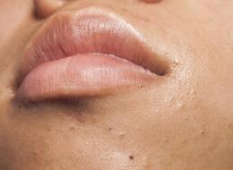 إياكِ وثقْب الرؤوس السوداء أو تقشير الجلد ليلاً.. 10 عادات خاطئة تضر بجمالك