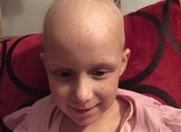 صورة مؤثرة: فتاة صغيرة لم يعد لديها إلا رمش واحد بعد العلاج الكيميائي