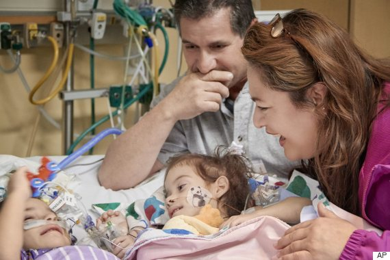 Formerly conjoined twins can't take their eyes off of each other