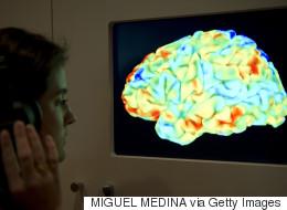 80세 노인도 뇌만은 젊은이와 같다