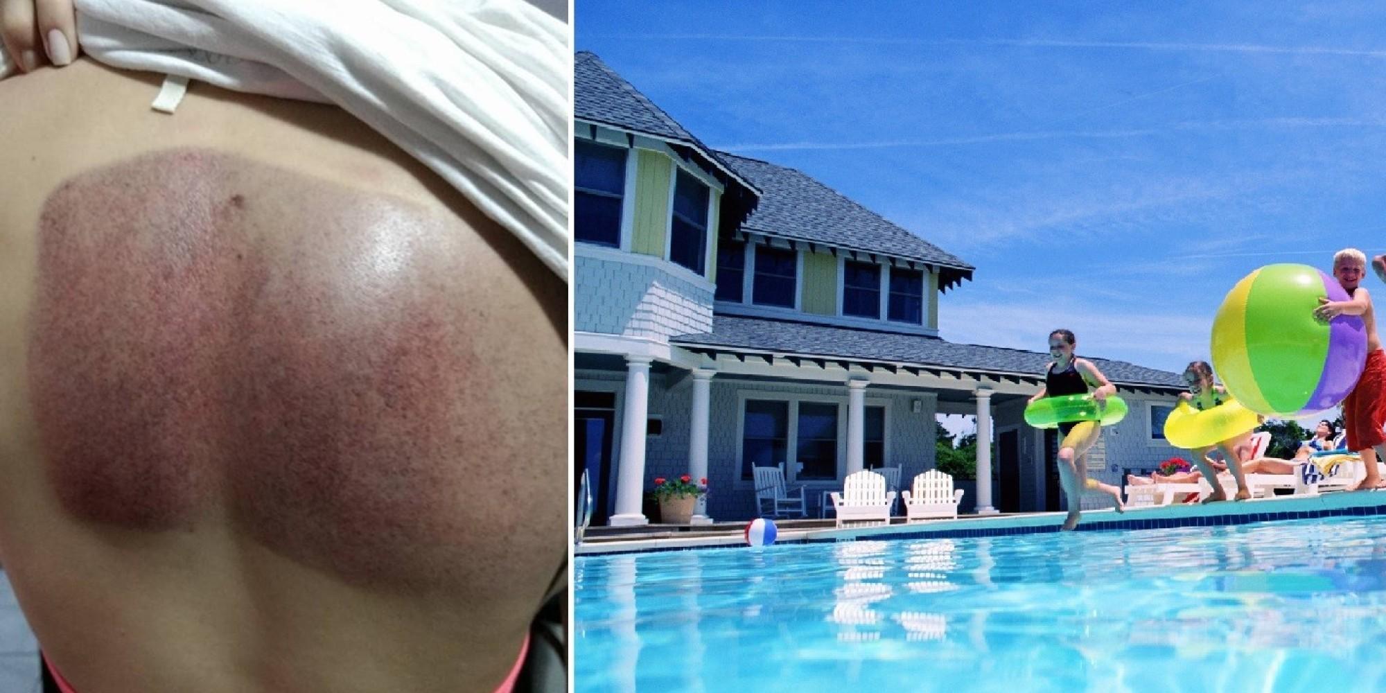 Mulher desabafa sobre acidente na piscina e faz alerta for Piscina sobre o solo