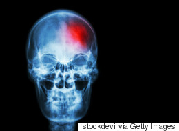 Migraine Sufferers At Higher Risk Of Stroke After Surgery