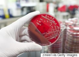 Γυναίκα πέθανε από υπερ-βακτήριο, που αποδείχθηκε ανθεκτικό σε κάθε διαθέσιμο αντιβιοτικό. Τι λέει το CDC των ΗΠΑ