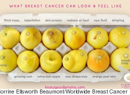 This Photo Of Lemons Can Help Women Detect Breast Cancer