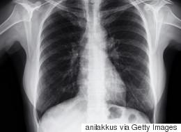 Λογισμικό τεχνητής νοημοσύνης προβλέπει τους θανάτους ασθενών με πνευμονική υπέρταση