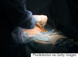 Aboriginal Women Say They Felt Coerced Into Sterilization Surgery