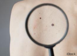 Quand l'intelligence artificielle détecte le cancer de la peau