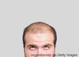 Se faire tatouer le crâne, une solution contre la chute de cheveux