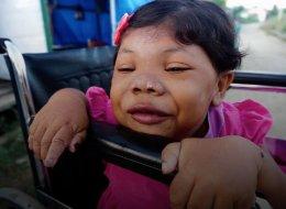 مرض نادر يجعل طفلة في عمر 24 تبدو وكأنها 4 سنوات