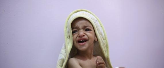 MALNUTRITION FOR CHILDREN