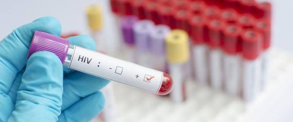 ما الفرق بين الـ HIV والإيدز؟