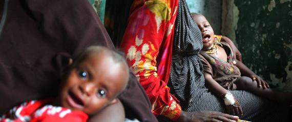 SOMALIA HUNGER