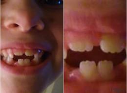 Le sourire de cette fillette est un hommage à Batman