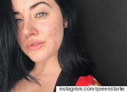 Your Acne Is Beautiful And This Model Is Out To Prove It