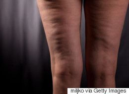 Five Facts And Fictions About Cellulite