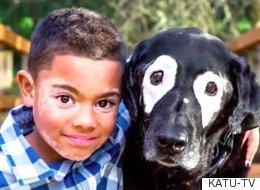 백반증을 앓는 소년에게 쌍둥이 동생이 생겼다