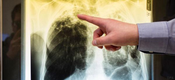 Tuberkulose: Mehr TBC-Fälle in Deutschland - gefährdet sind nicht nur Migranten