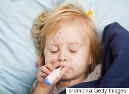 Επιδημία ιλαράς στην Ευρώπη. Εντατικοποίηση των εμβολιασμών ζητά ο Παγκόσμιος Οργανισμός Υγείας
