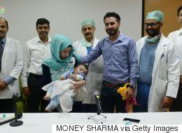 Un bébé à huit bras et jambes opéré en Inde