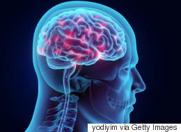 뇌 전기자극, 기억력 향상에 도움된다(연구결과)